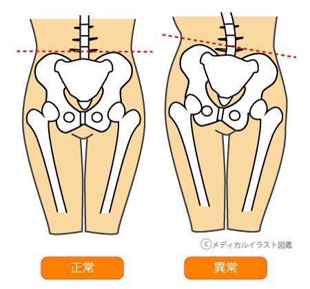 骨盤歪み比較